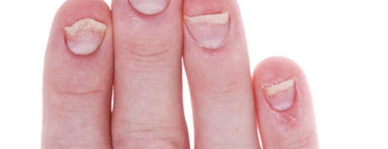 nail-biting-indicates